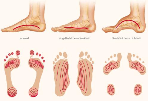 PraeMedicon - Blog - Gesunde Füße sorgen für ein stabiles Fundament ...